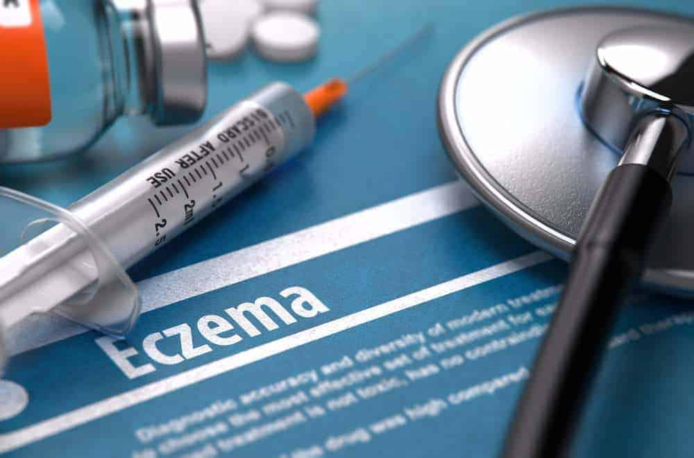 What Is Eczema?