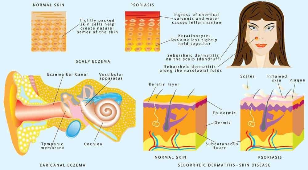 eczema skin dandruff