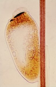 head louse egg or nit attached to hair shaft of human host