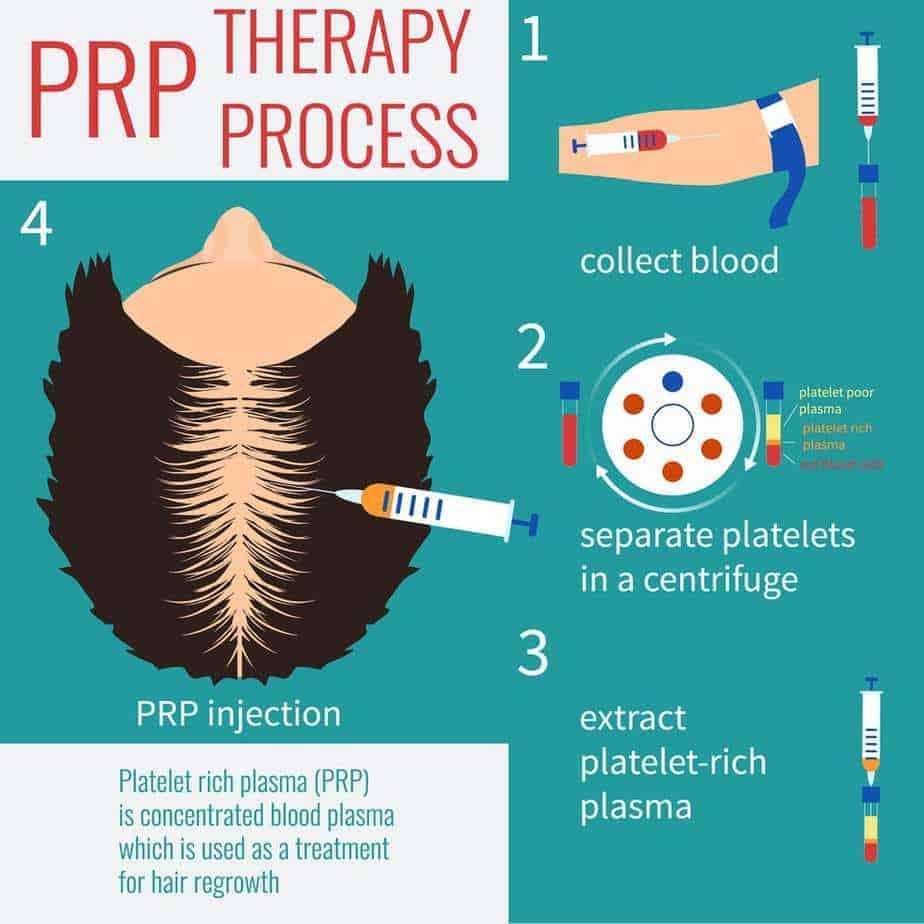 diagram of the platelet-rich plasma (PRP) process
